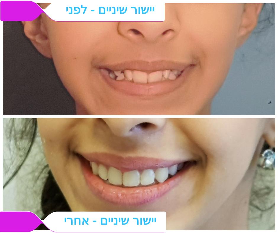 לפני / אחרי יישור שיניים